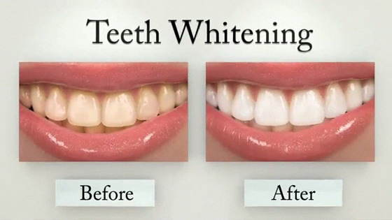 https://www.sensationalteeth.com/wp-content/uploads/video/whitening